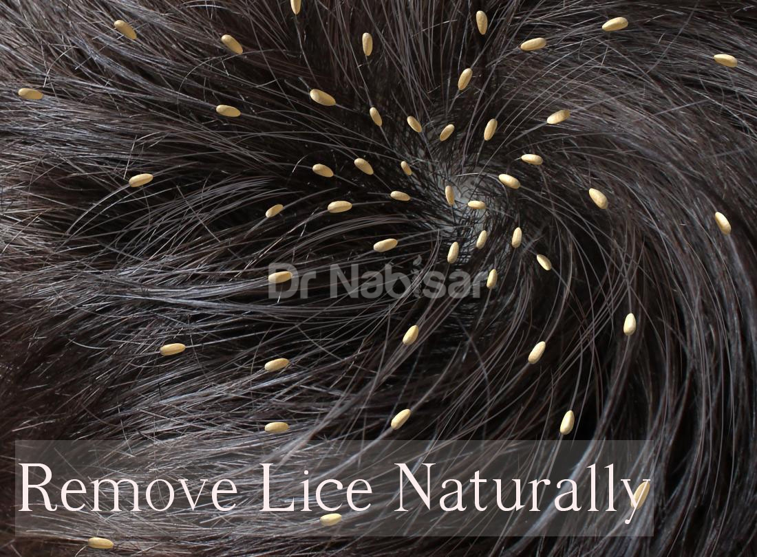 Can lemongrass be used for head lice treatment?